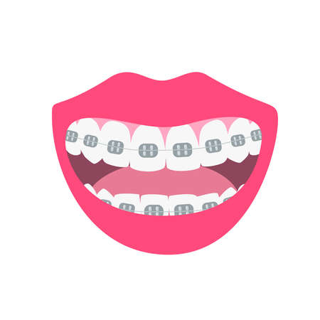 Happy smiles showing alignment and whitening teeth process. Alignment of bite of teeth, dental row with braces, Orthodontic healthcare concept. Vector illustration