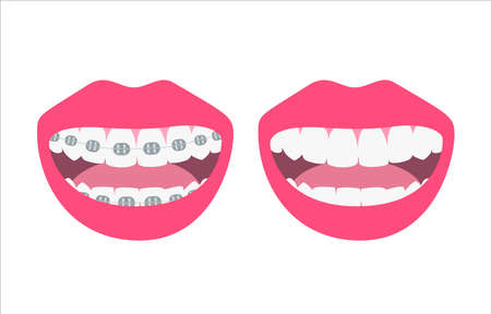Happy smiles showing before and after alignment and whitening teeth process. Alignment of bite of teeth, dental row with braces, Orthodontic healthcare concept. Vector illustration