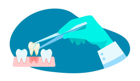 Dental treatment. Dentist hold dental instrument in hand and examining patient's tooth. Dental healthcare. Stomatology concept. Vector illustration flat design. Design for banner, card, clinic Vettoriali