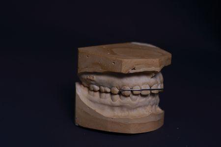Dental Stone Study Models