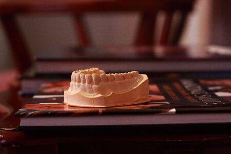 Stone dental model on book Imagens