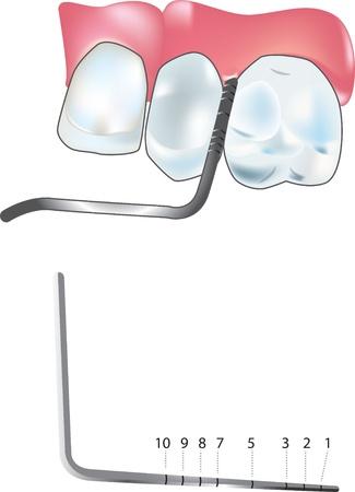 probe: periodontal probe
