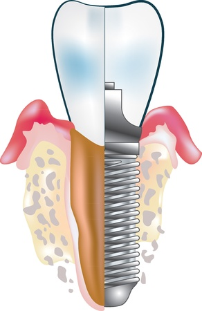 tooth implant Stock Vector - 12480256