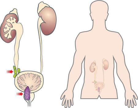 prostate cancer metastasis, color vector Vector