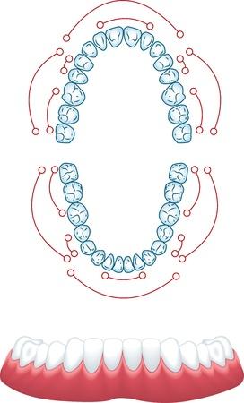 dentures: Dentures, medical illustration Illustration