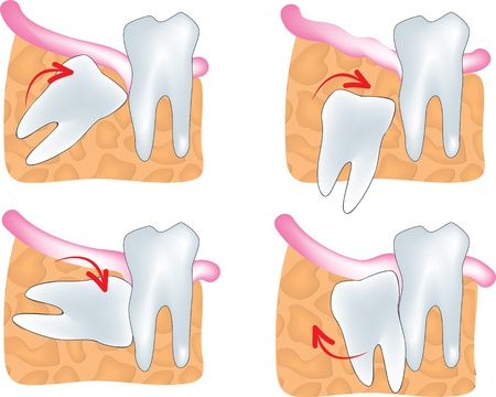 tooth extraction: impacted wisdom tooth