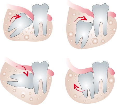 Impacted wisdom tooth Illustration