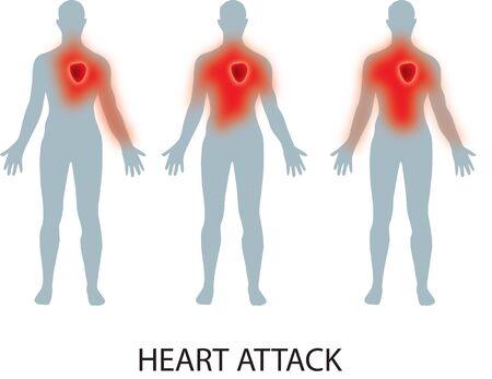 Heart Attack Stock fotó