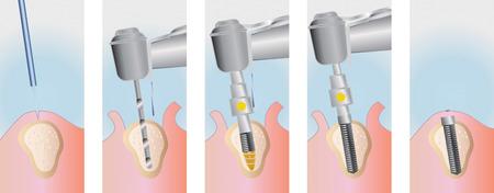 implants: dental implants Stock Photo