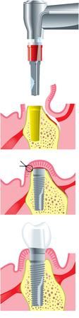 orthodontist: dental implants Illustration