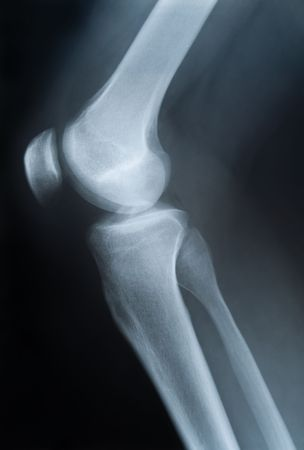 X-ray foto van enkele knie