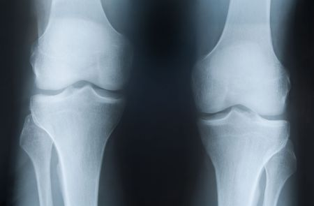 broken knee: X-ray photograph of  two knees