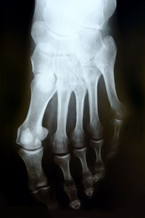 X-ray photograph of human foot Stock Photo - 3925771