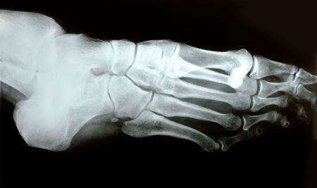X-ray photograph of human foot photo