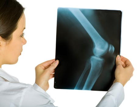 Young attractive female doctor looking x-ray photos of knee. Isolated on white Stock Photo - 4166624