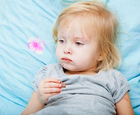 varicela: Niña enferma es comer chocolate