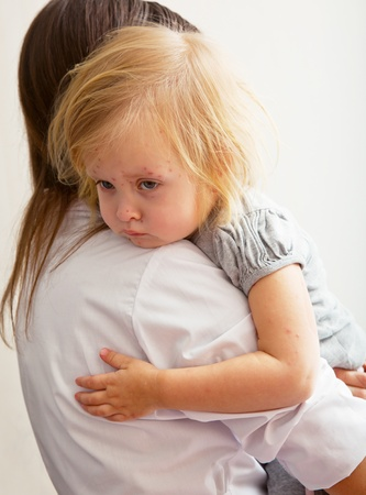 rash: a mother is holding tight a sick girl.  Stock Photo