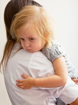 sarpullido: una madre sostiene una estrecha una niña enferma.