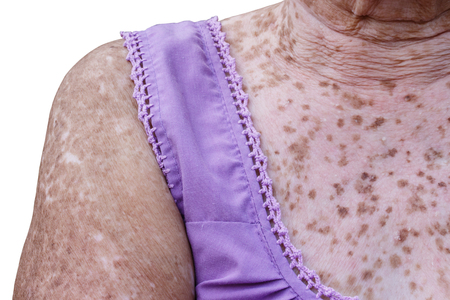 A body of elderly Asian women with of freckles and wrinkle, at the age to more than 90 year's old. Banco de Imagens
