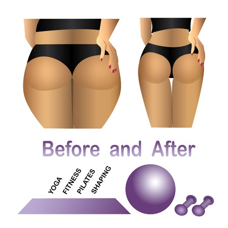 before: Womans body before and after fitness,yoga. Cellulite versus smooth skin. Cellulite, Fat on belly.