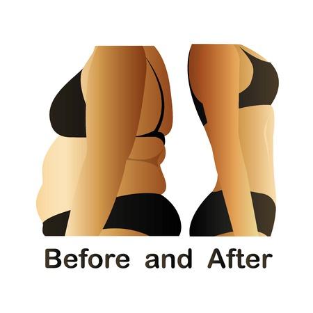 Het lichaam van de vrouw voor en na fitness, yoga. Cellulitis versus gladde huid. Cellulitis, vet op de buik.