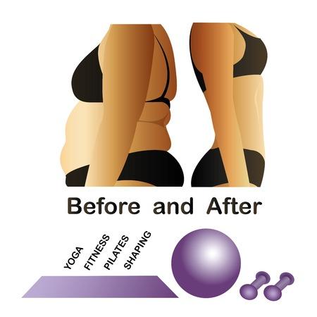 cellulit: Női test előtt és után fitness, jóga. Narancsbőr ellen sima bőr. Cellulit, Fat a hasa.