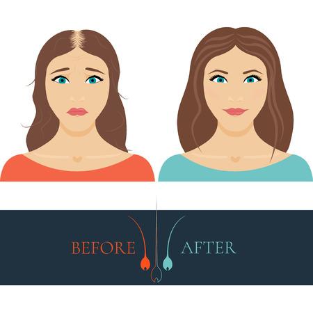 Een vrouw verliest haar voor en na haar behandeling en haartransplantatie. Haarverlies bij vrouwen in te stellen. Haarverzorging concept. Haarwortel logo. Haaruitval kliniek conceptontwerp. Geïsoleerde vector illustratie. Logo