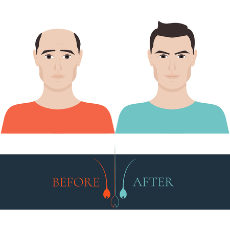 baldness: A man losing hair before and after hair treatment and hair transplantation. Male hair loss set. Hair care concept. Hair bulb logo. Hair loss clinic concept design. Isolated vector illustration.
