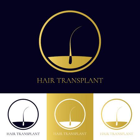 Haartransplantatie logo template. Haaruitval behandeling concept. Haar medische diagnostiek label. Haarfollikel icoon. Haarwortel symbool. Perfect voor het haar klinieken of diagnostische centra. Vector illustratie.