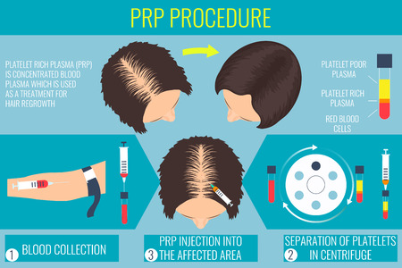 plasmas: Platelet rich plasma injection. PRP therapy process. Male hair loss treatment infographics. Injection. Meso therapy. Hair growth stimulatio. Vector illustration.