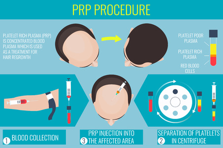 Platelet rich plasma injection. PRP therapy process. Male hair loss treatment infographics. Injection. Meso therapy. Hair growth stimulatio. Vector illustration.
