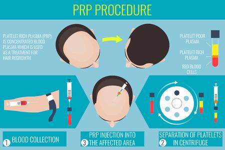 Platelet Rich Plasma-Injektion. PRP-Therapie-Prozess. Männliche Haarausfall Behandlung Infografiken. Injektion. Meso-Therapie. Das Haarwachstum stimulatio. Vektor-Illustration.
