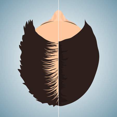 transplantation: Top view portrait of a woman losing hair before and after hair treatment and hair transplantation. Divided image of a woman head. Two halves. Female hair loss. Hair care concept. Vector illustration.