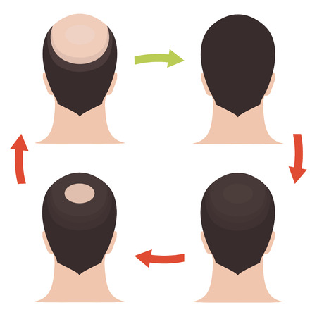 cuticle: Hair loss stages set. Rear view of a man losing hair before and after hair treatment and hair transplantation. Implantation of hair. Male hair loss pattern. Alopecia. Hair growth. Vector illustration.
