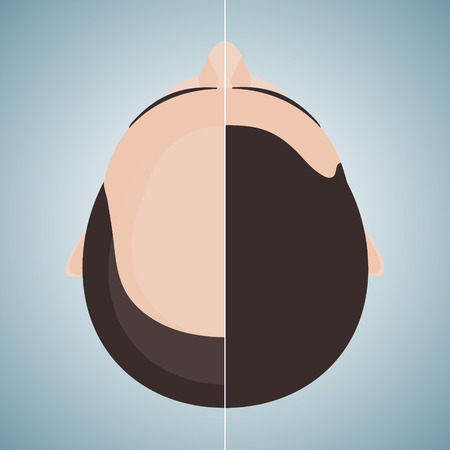 Top view portrait of a man before and after hair treatment and hair transplantation. Divided image of a head. Two halves. Hair care concept. Isolated vector illustration. Ilustração