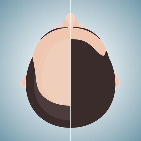 calvo: Vista superior retrato de un hombre antes y después del tratamiento del cabello y el trasplante de pelo. imagen dividida de una cabeza. Dos mitades. concepto de cuidado del cabello. ilustración del vector.