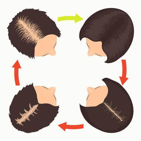 calvicie: etapas de pérdida de cabello en la mujer establecen. Vista superior retrato de una mujer antes y después del tratamiento del cabello y el trasplante de pelo. La calvicie femenina patrón. La implantación de pelo. ilustración del vector.