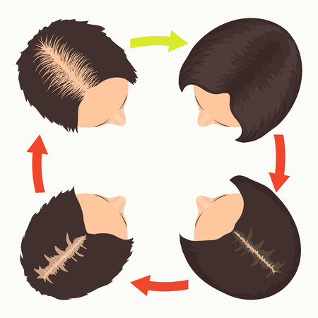 transplantation: Female hair loss stages set. Top view portrait of a woman before and after hair treatment and hair transplantation. Female pattern baldness. Implantation of hair. Isolated vector illustration.