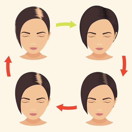 calvicie: etapas de p�rdida de cabello en la mujer establecen. Mujer antes y despu�s del tratamiento del cabello y el trasplante de pelo. La calvicie femenina patr�n. La implantaci�n de pelo. Ilustraci�n del vector.