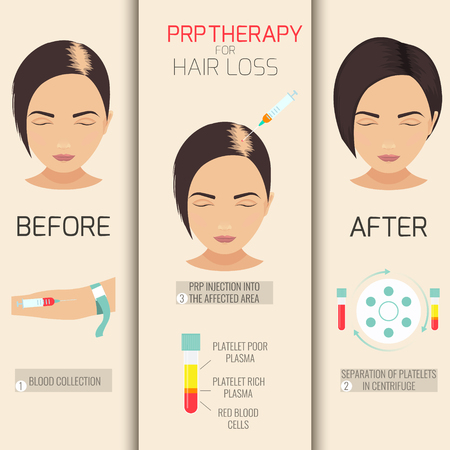 stimulation: Platelet rich plasma injection. PRP therapy process. Female hair loss treatment infographics. Meso therapy. Hair growth stimulation. Vector illustration.