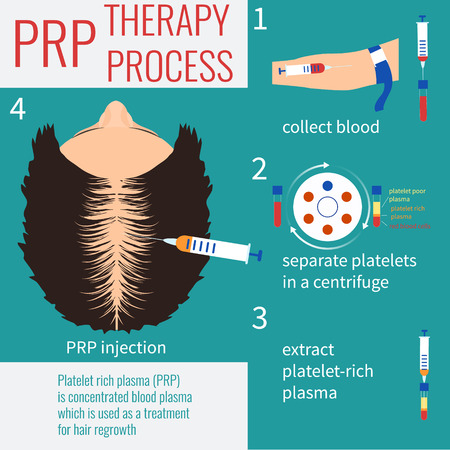 Platelet rich plasma injection. PRP therapy process. Hair loss treatment. Injection. Mesotherapy. Hair growth stimulation. Transplantation of hair. Vectores
