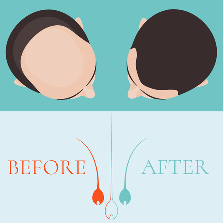 implantation: Top view of a man before and after hair treatment and hair transplantation. Implantation of hair. Hair care concept. Hair bulb  . Hair loss clinic concept design. Isolated vector illustration. Illustration