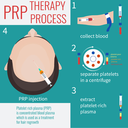 stimulation: Platelet rich plasma injection. PRP therapy process. Male hair loss treatment infographics. PRP injection. PRP procedure.  Meso therapy. Hair growth stimulation. Male alopecia. Vector illustration.