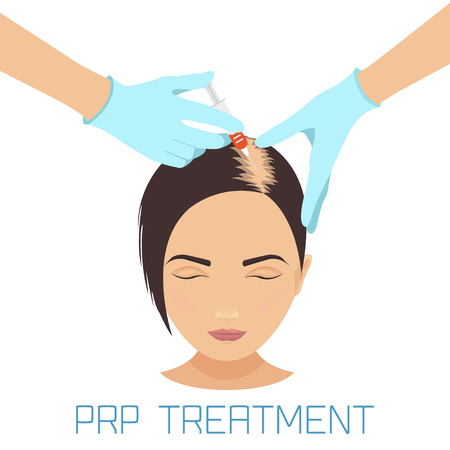 Platelet rich plasma injection procedure. PRP therapy process. Female hair loss treatment infographics. Meso therapy. Hair growth stimulation. Vector illustration.