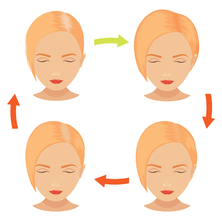 implantation: Female hair loss stages set. Red hair woman before and after hair treatment and hair transplantation. Female pattern baldness. Implantation of hair.