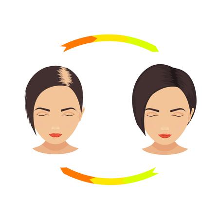 bald: Mujer con el adelgazamiento del cabello antes y después del tratamiento del cabello y el trasplante de pelo. establece la pérdida de cabello de patrón femenino. concepto de cuidado del cabello. Ilustración aislada. Vectores