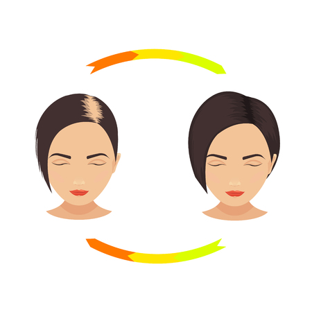 bald girl: Woman with thinning hair before and after hair treatment and hair transplantation. Female pattern hair loss set. Hair care concept. Isolated illustration. Illustration