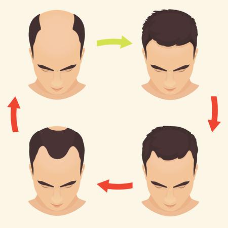 baldness: etapas de p�rdida de cabello Conjunto del var�n. El hombre antes y despu�s del tratamiento del cabello y el trasplante de pelo. Calvicie de patr�n masculino. El trasplante de cabello. Ilustraci�n del vector.
