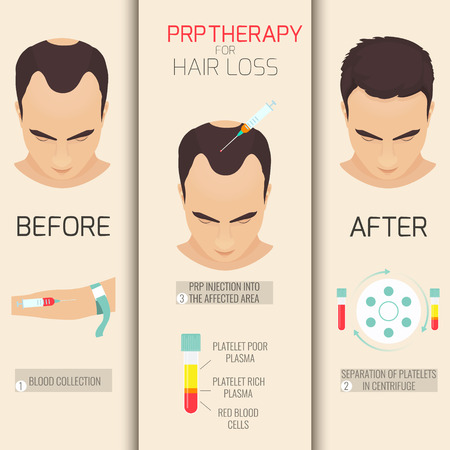 therapies: Platelet rich plasma injection. PRP therapy process. Female hair loss treatment infographics. Meso therapy. Hair growth stimulation. Vector illustration.