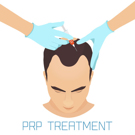 procedure: Platelet rich plasma injection procedure for men. PRP treatment process. Male hair loss treatment infographics. Meso therapy. Hair growth stimulation. Vector illustration.